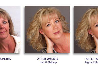 Before & After Digital Enhancement